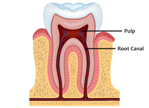 Root Canal Tooth